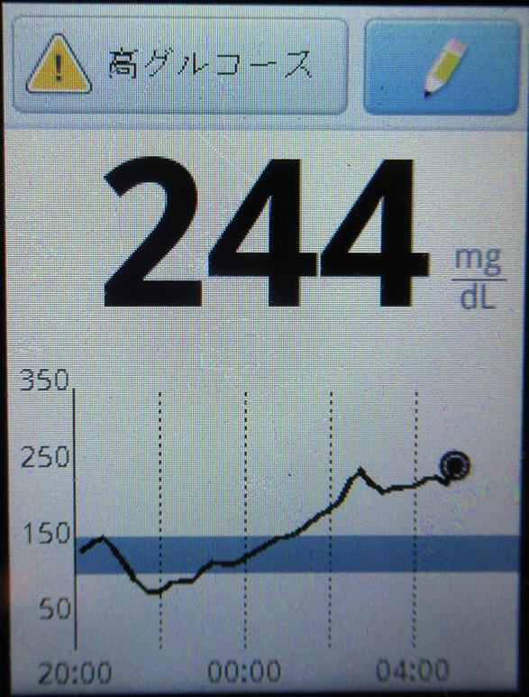 f:id:type1diabetes:20190228105519j:plain