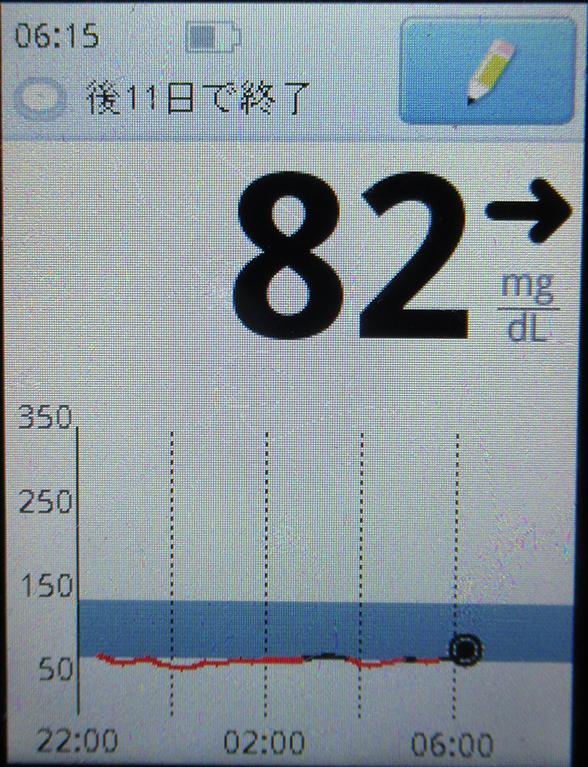 f:id:type1diabetes:20190308082715j:plain