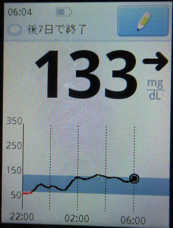 f:id:type1diabetes:20190420185020j:plain