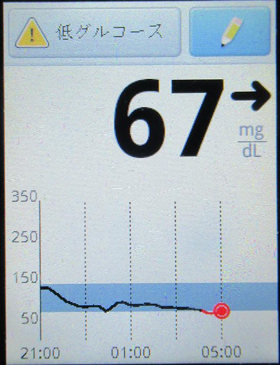 f:id:type1diabetes:20190527105132j:plain
