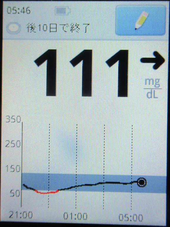 f:id:type1diabetes:20190622071455j:plain