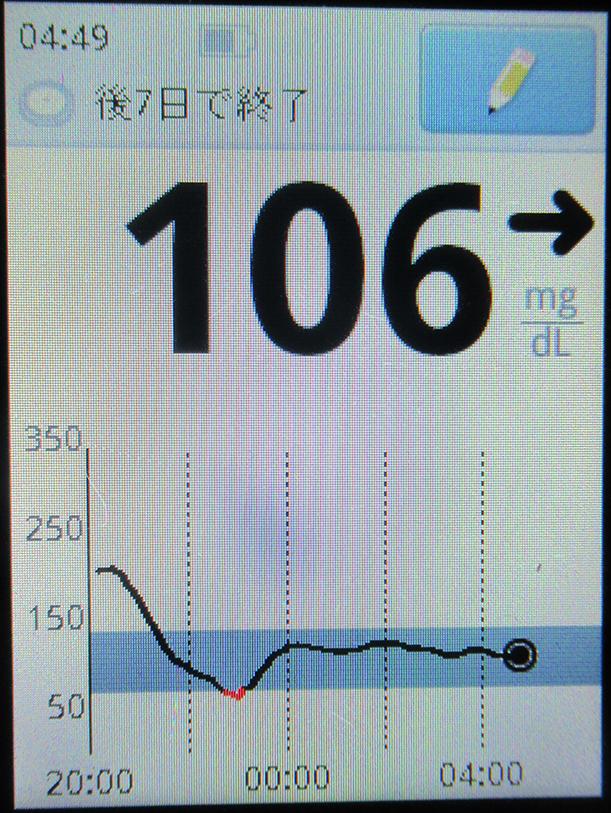 f:id:type1diabetes:20190625055347j:plain