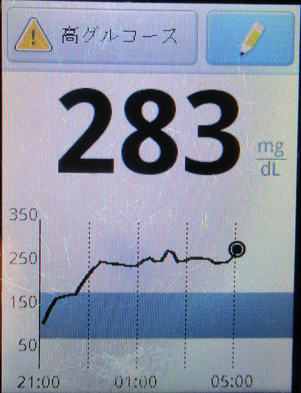 f:id:type1diabetes:20200117104752j:plain