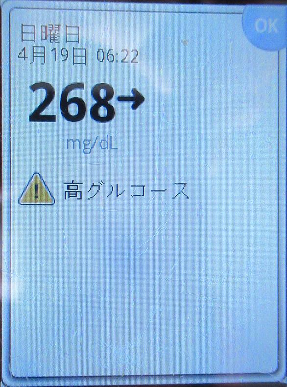 f:id:type1diabetes:20200419133751j:plain