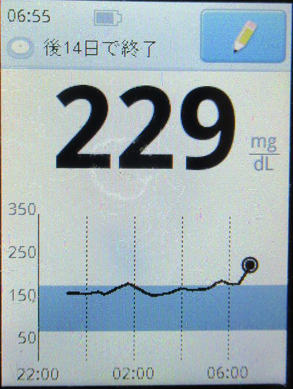 f:id:type1diabetes:20200424094733j:plain