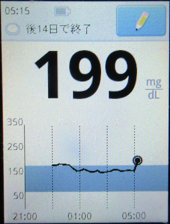 f:id:type1diabetes:20200509081114j:plain