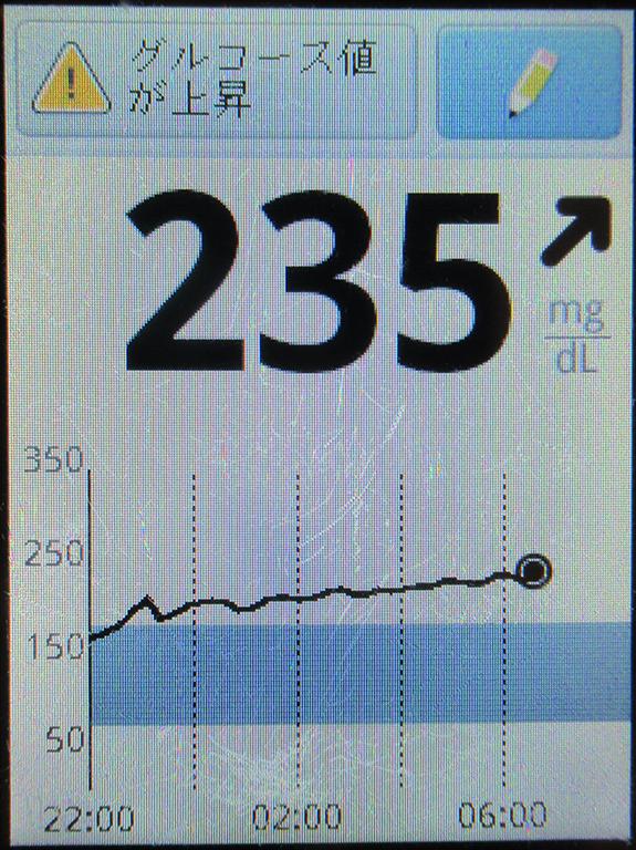 f:id:type1diabetes:20200510090458j:plain