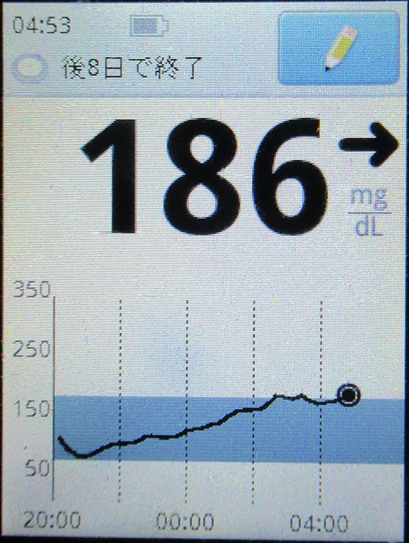 f:id:type1diabetes:20200515064412j:plain