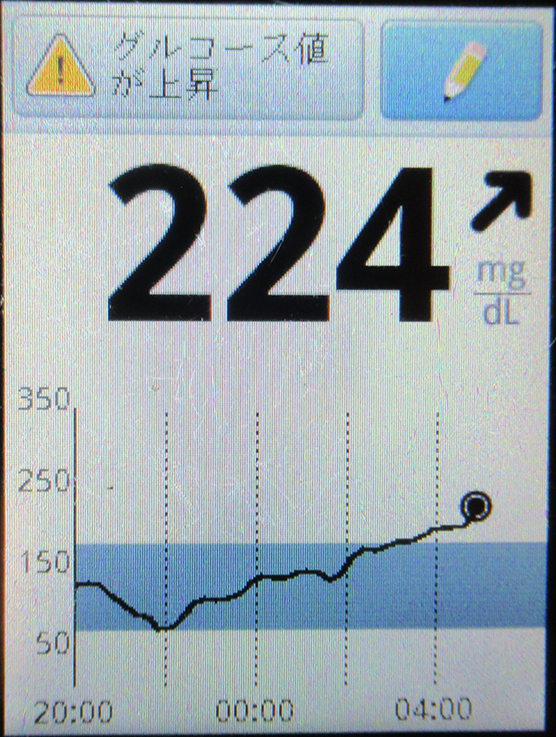 f:id:type1diabetes:20210107103808j:plain