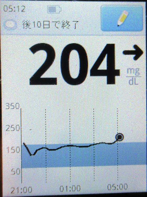 f:id:type1diabetes:20210118102952j:plain