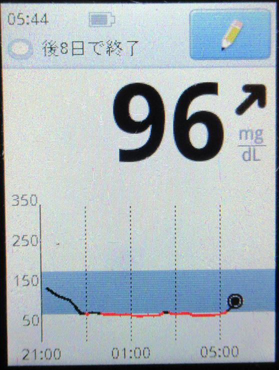 f:id:type1diabetes:20210120082001j:plain
