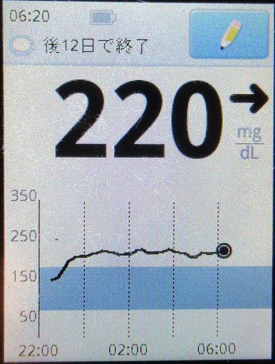 f:id:type1diabetes:20210213075002j:plain