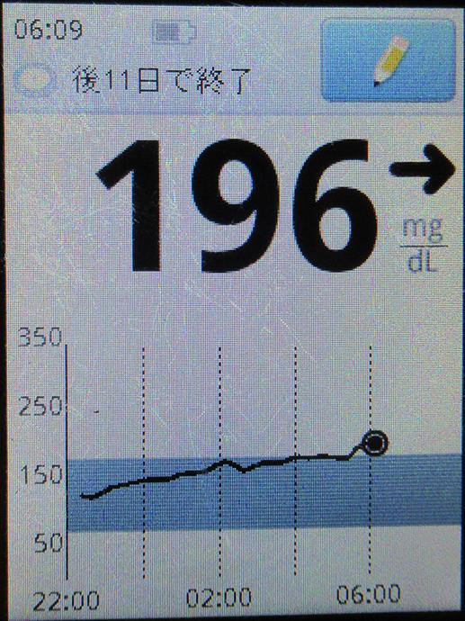 f:id:type1diabetes:20210214074558j:plain