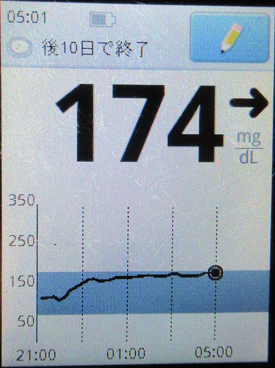 f:id:type1diabetes:20210215142128j:plain
