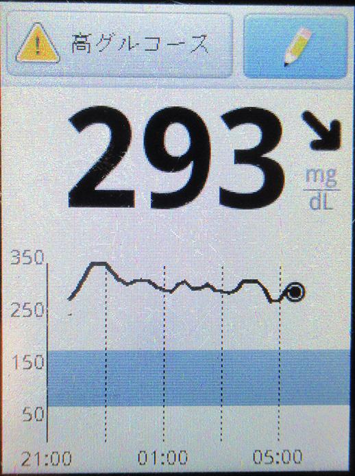 f:id:type1diabetes:20210228171013j:plain