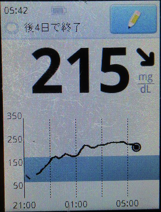 f:id:type1diabetes:20210307142158j:plain