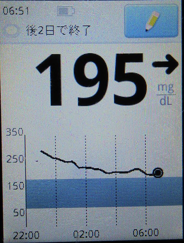 f:id:type1diabetes:20210309084046j:plain