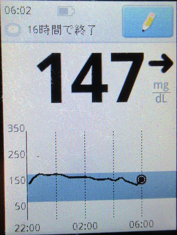 f:id:type1diabetes:20210310075944j:plain