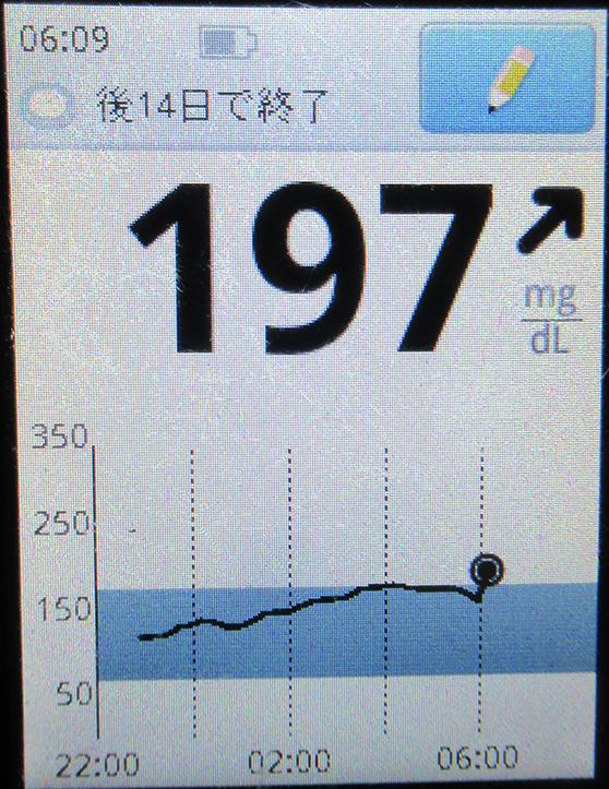 f:id:type1diabetes:20210311082626j:plain