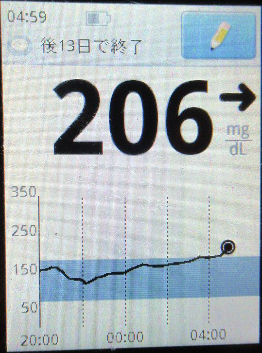 f:id:type1diabetes:20210312103158j:plain