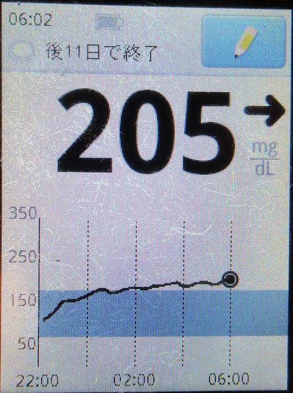 f:id:type1diabetes:20210314171736j:plain