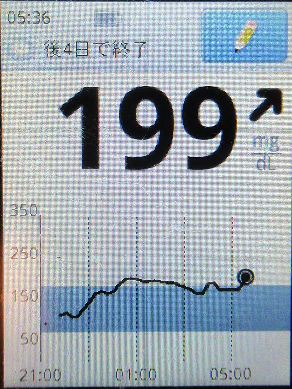 f:id:type1diabetes:20210321071624j:plain