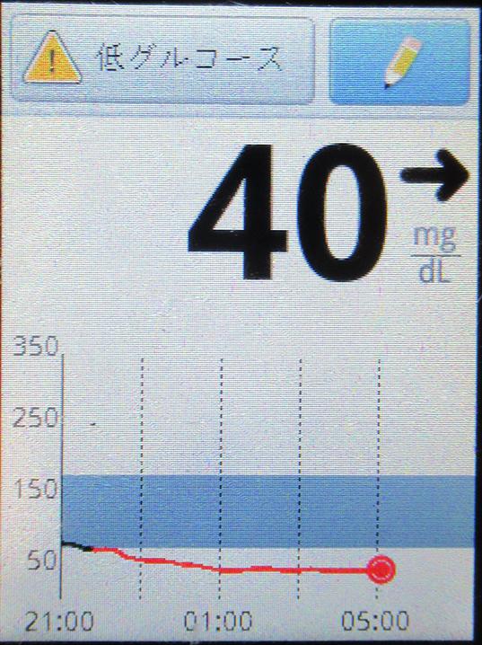 f:id:type1diabetes:20210324115344j:plain