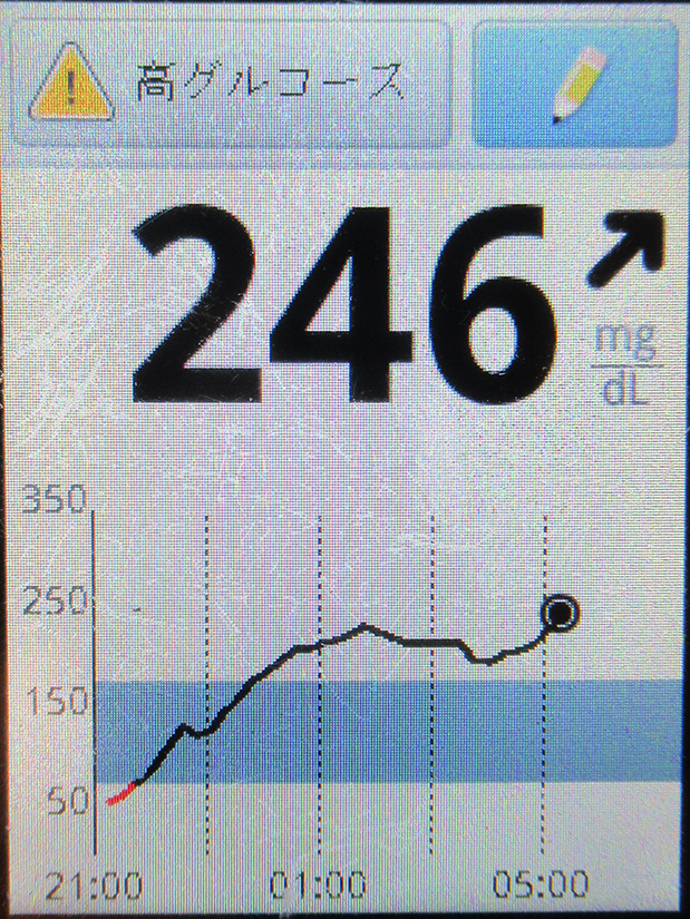 f:id:type1diabetes:20210327071321j:plain