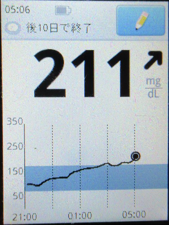 f:id:type1diabetes:20210329110651j:plain