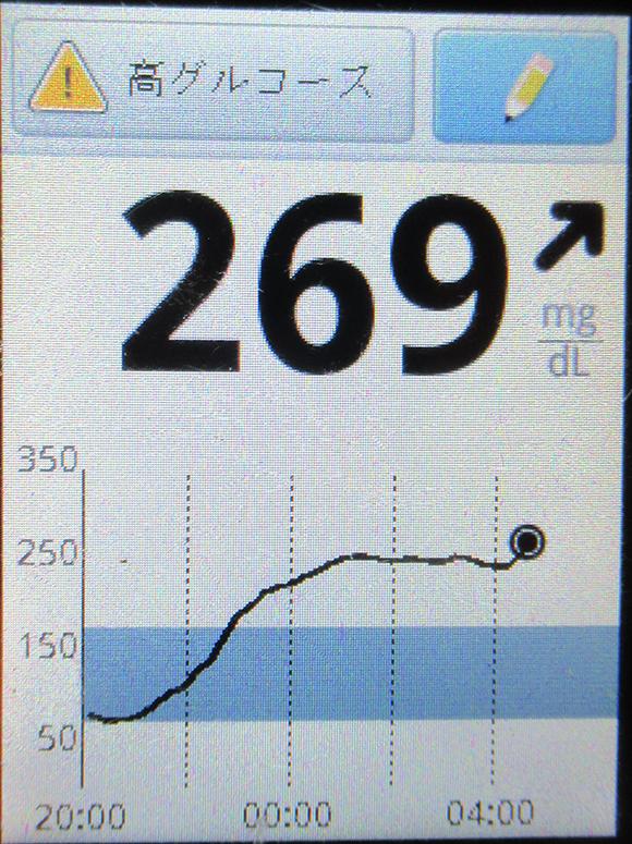 f:id:type1diabetes:20210401114501j:plain