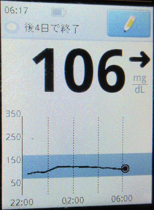 f:id:type1diabetes:20210404084935j:plain