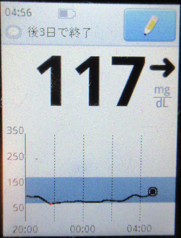 f:id:type1diabetes:20210406123203j:plain