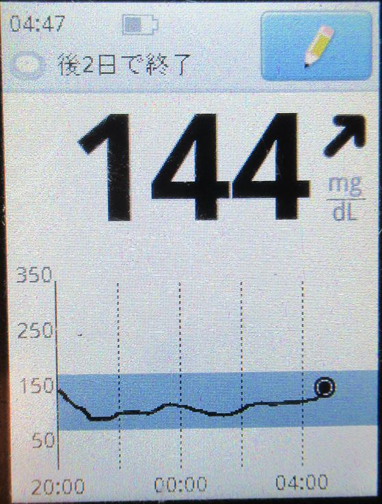 f:id:type1diabetes:20210407110051j:plain