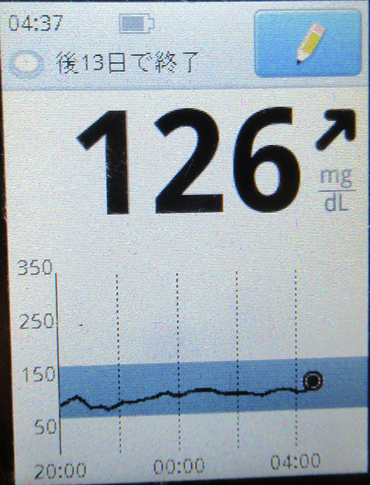 f:id:type1diabetes:20210409110047j:plain