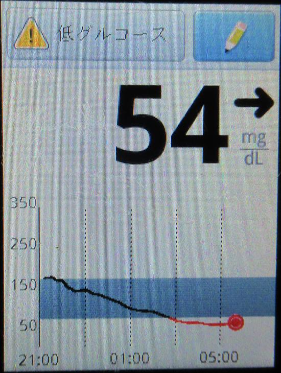 f:id:type1diabetes:20210412081354j:plain
