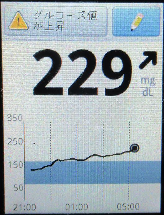 f:id:type1diabetes:20210430082232j:plain