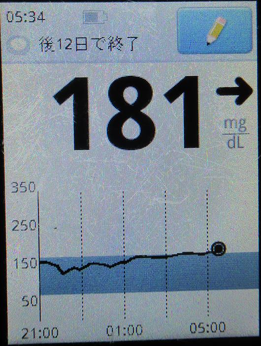 f:id:type1diabetes:20210501071036j:plain