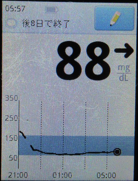 f:id:type1diabetes:20210505071318j:plain