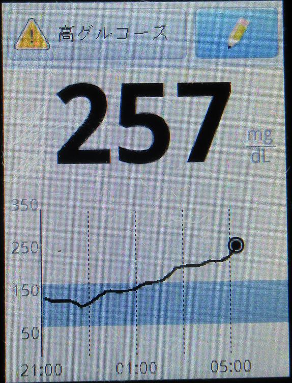 f:id:type1diabetes:20210506065202j:plain