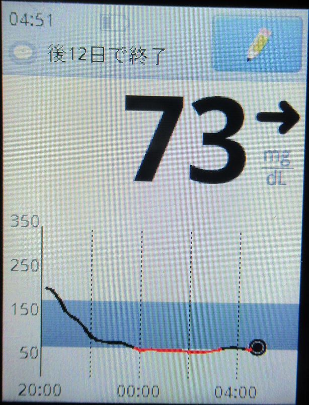 f:id:type1diabetes:20210618110618j:plain