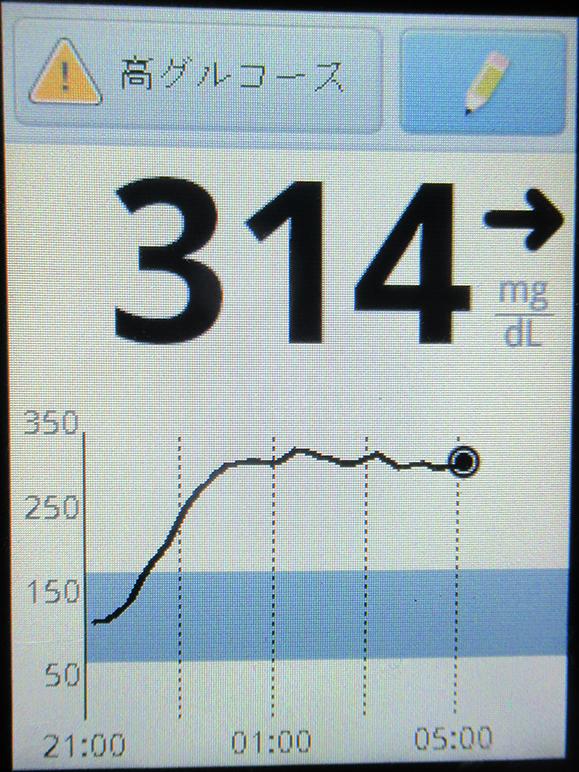 f:id:type1diabetes:20210620063117j:plain