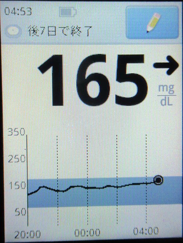f:id:type1diabetes:20210623112712j:plain