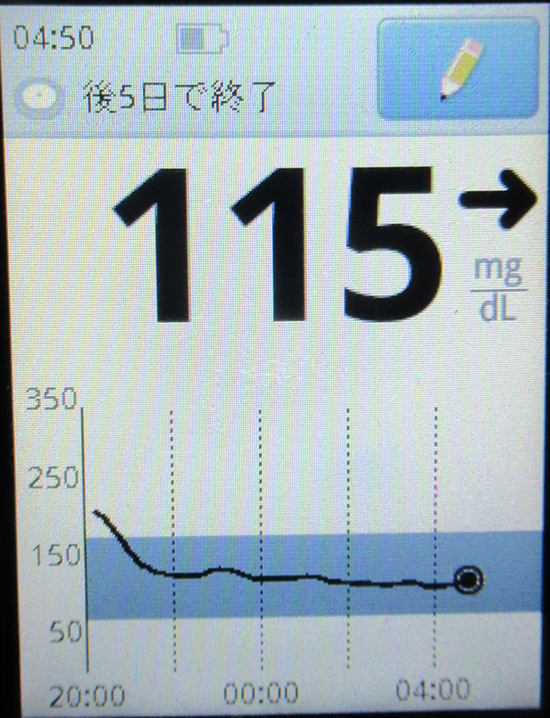 f:id:type1diabetes:20210727114942j:plain