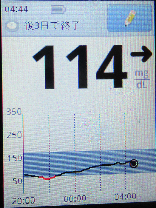 f:id:type1diabetes:20210729151747j:plain