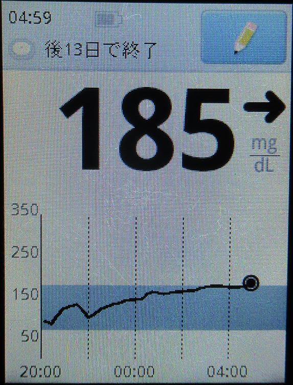 f:id:type1diabetes:20210802141212j:plain