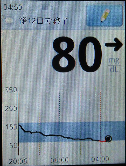 f:id:type1diabetes:20210803170125j:plain