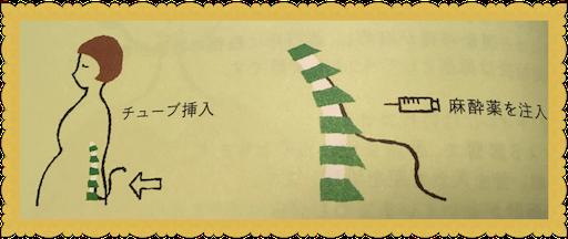 f:id:uchinokosodate:20180702111207p:image