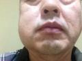親知らず抜歯後腫れた右頬。