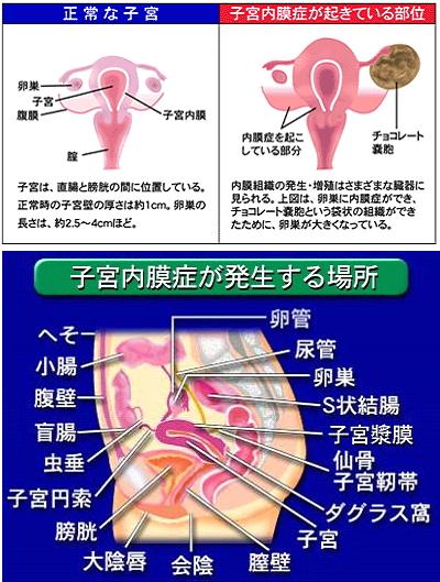 子宮内膜症とは、月経期に子宮以外の場所にできた子宮内膜も剥離・出血しますが、血液や内膜を体外に出すことができず、体内に溜まります。結果、チョコレート嚢胞ができたり、諸臓器との癒着が起こります。