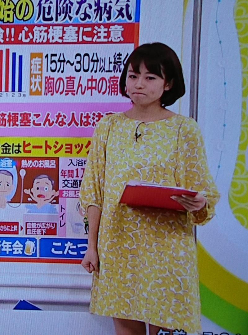 2016.12.19 ふゆなのにミニスカート - 金沢歩さん (1) 800-1080